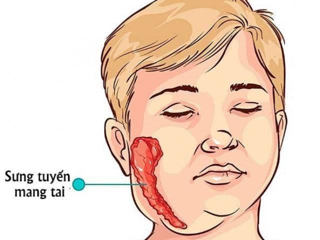 Biểu hiện của bệnh quai bị