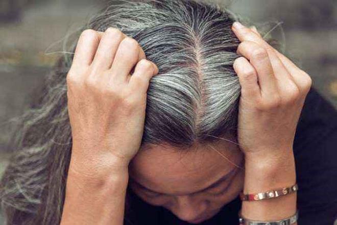 Tóc bạc là nổi ám ảnh của rất nhiều chị em